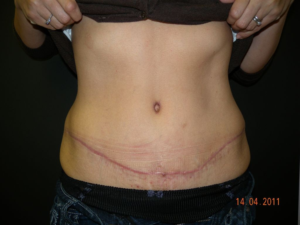 Abdominoplasty (Tummy Tuck) | David Lam Plastic Surgeon